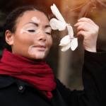 O que é Vitiligo ?