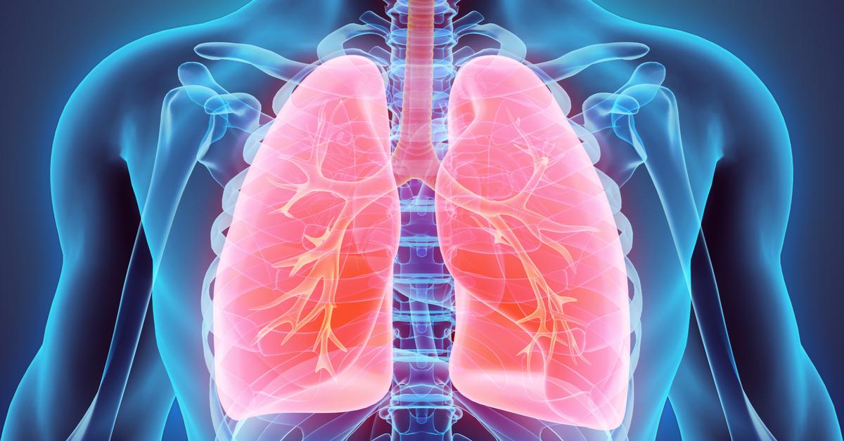 fibrose-pulmonar
