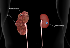 Doença renal policística: cistos na superfície do rim