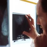 Tumores ósseos cancerosos
